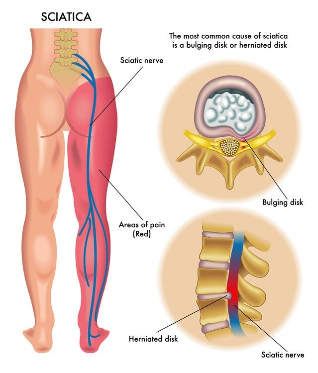 Sciatica, have I got it or is it something else?