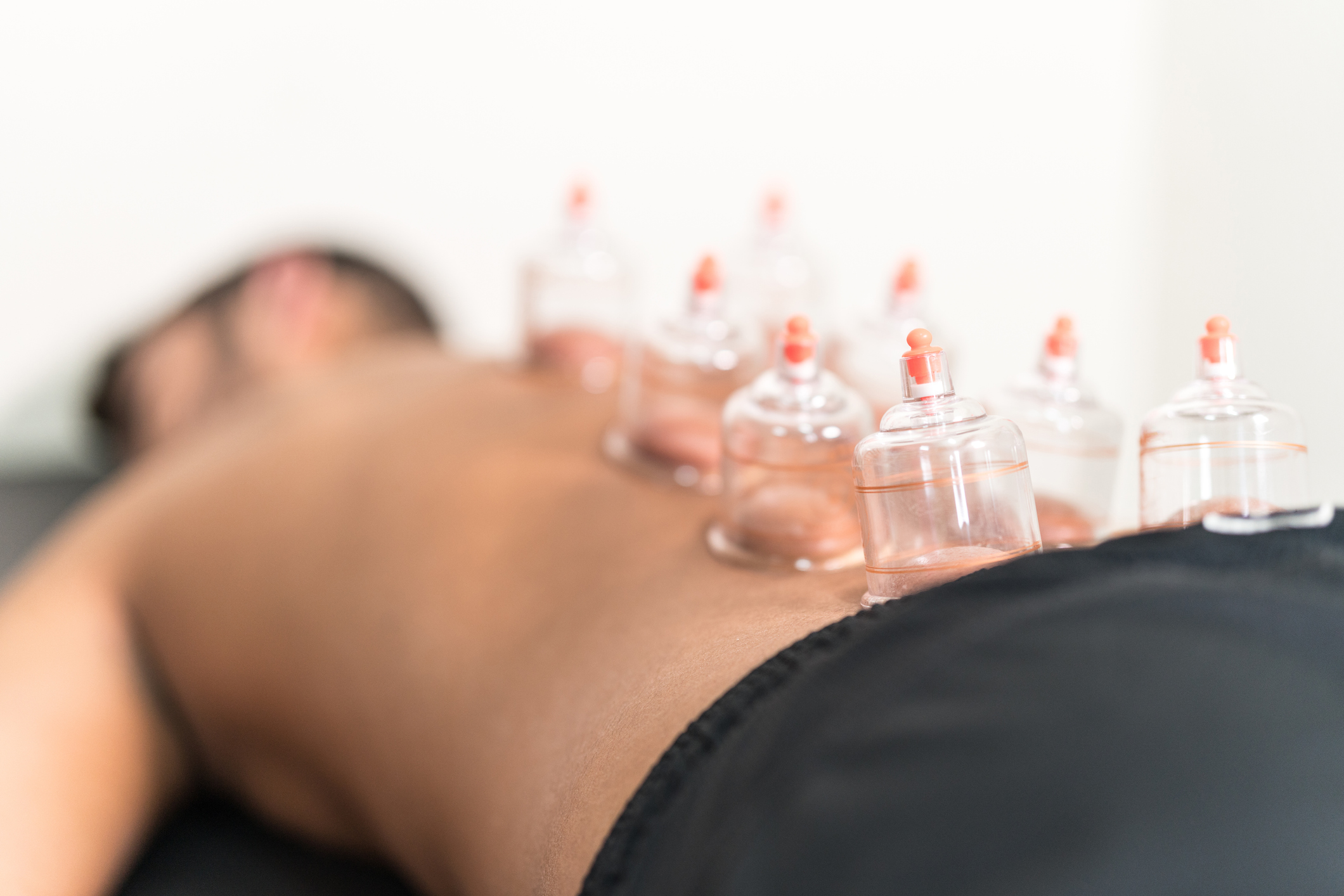 Applying cupping therapy in traditional Chinese medicine on man back